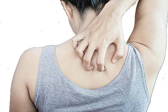 Как лечить прыщи, появляющиеся от избытка пота?