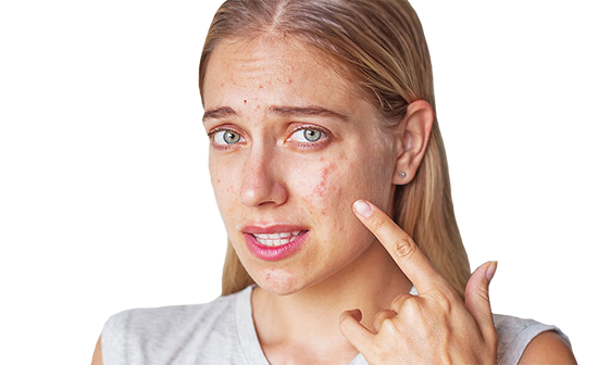 Как лечить демодекоз?