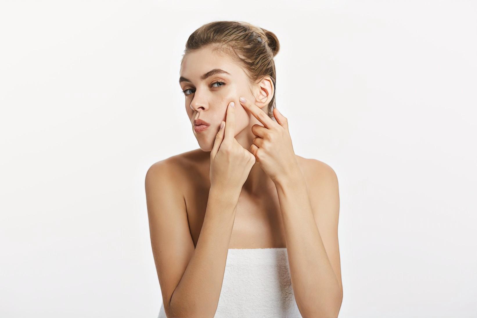 фото девушки с акне перед приемом у косметолога