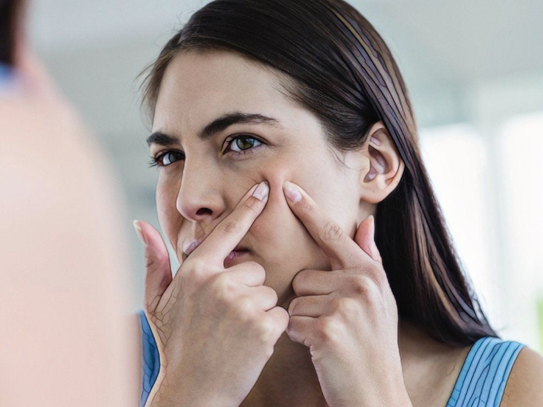 женщина с симптомами позднего акне