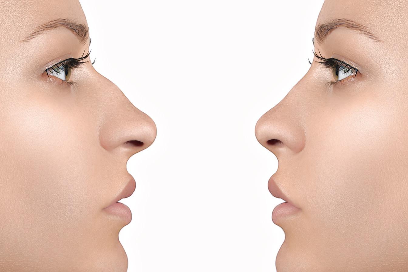 результат после контурной пластики носа